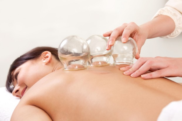 Cupping Therapy - Dr Maegan Knutson Specialty Natural Medicine Mukilteo Everett Seattle