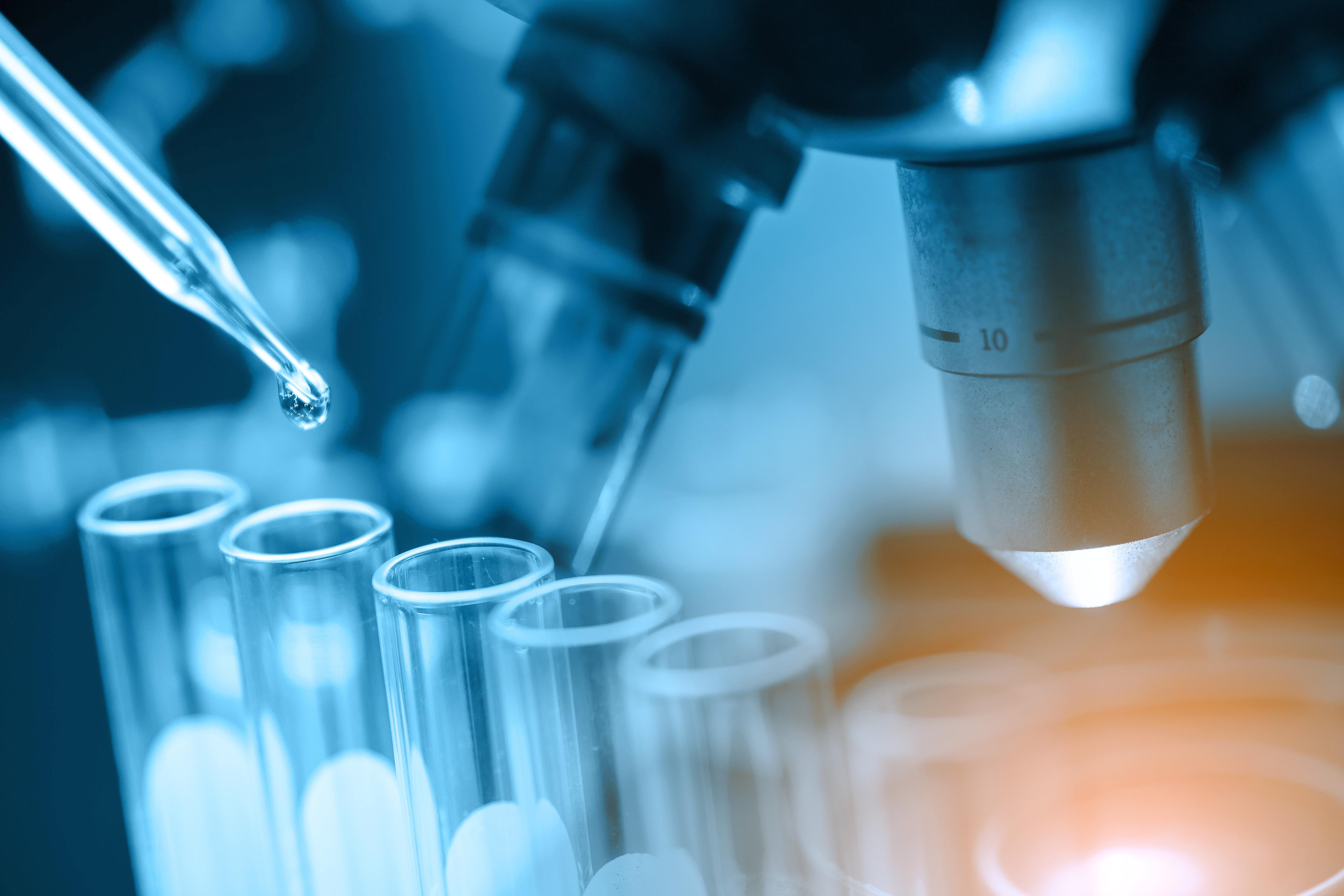 COVID-19 Antibodies Testing